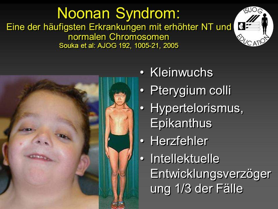 Noonan Syndrom: Eine der häufigsten Erkrankungen mit erhöhter NT und normalen Chromosomen Souka et al: AJOG 192, 1005-21, 2005