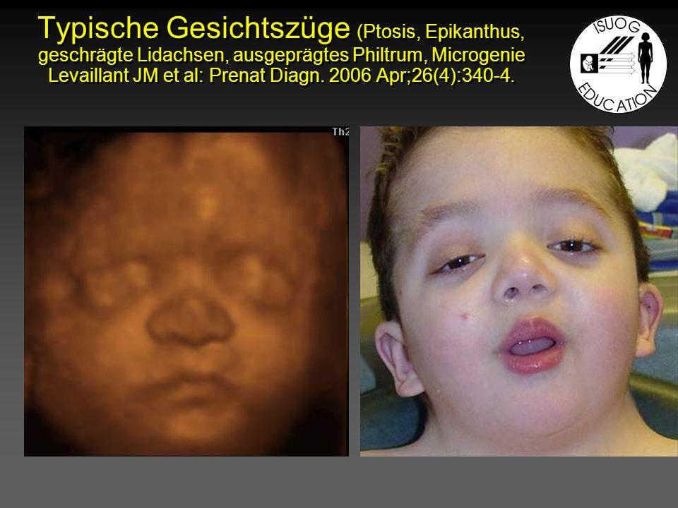 Typische Gesichtszüge (Ptosis, Epikanthus, geschrägte Lidachsen, ausgeprägtes Philtrum, Microgenie Levaillant JM et al: Prenat Diagn.