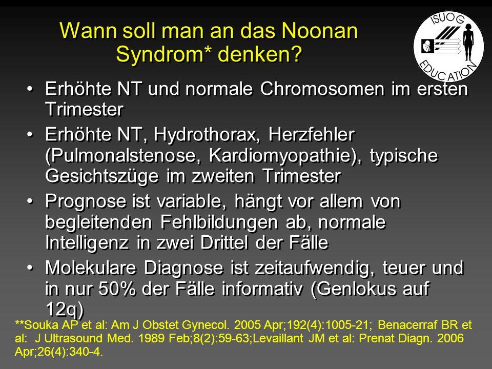Wann soll man an das Noonan Syndrom* denken