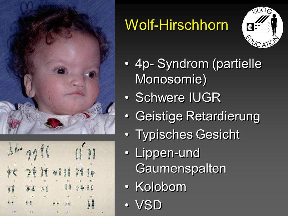 Wolf-Hirschhorn 4p- Syndrom (partielle Monosomie) Schwere IUGR