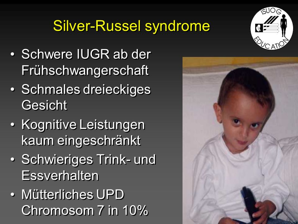 Silver-Russel syndrome