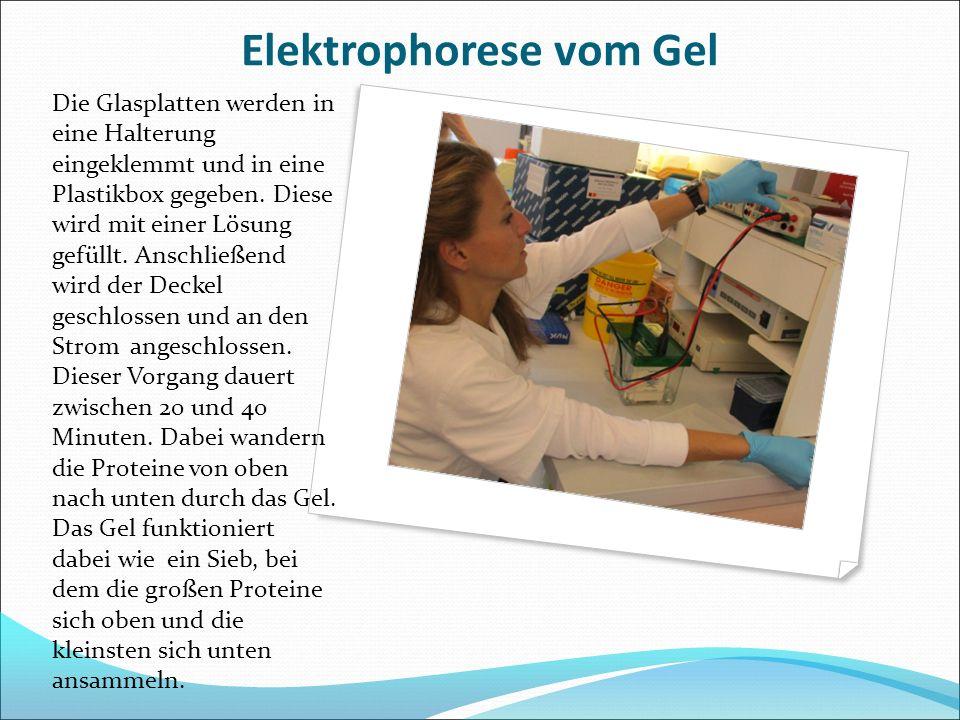 Elektrophorese vom Gel