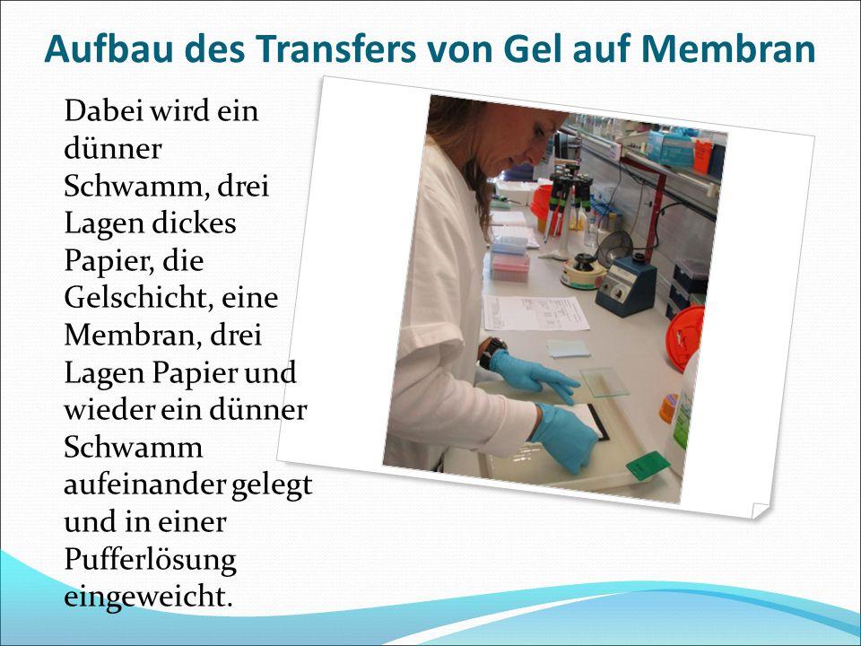 Aufbau des Transfers von Gel auf Membran