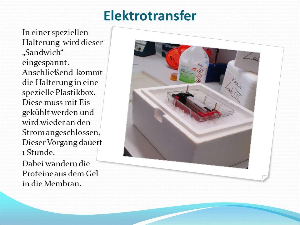 Elektrotransfer