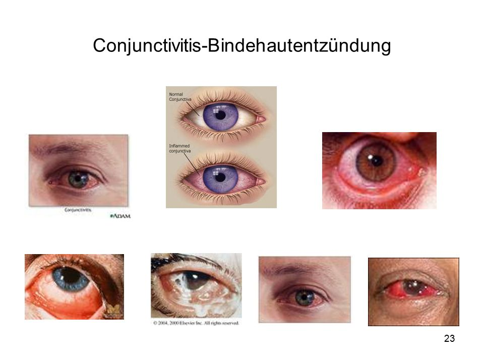 Conjunctivitis-Bindehautentzündung