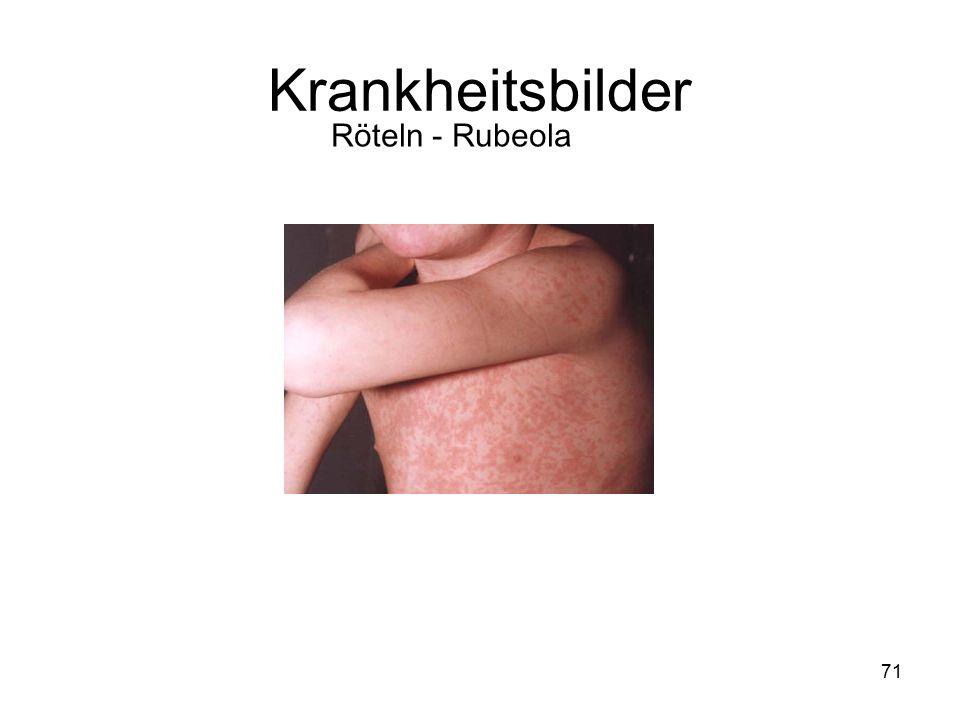 Krankheitsbilder Röteln - Rubeola