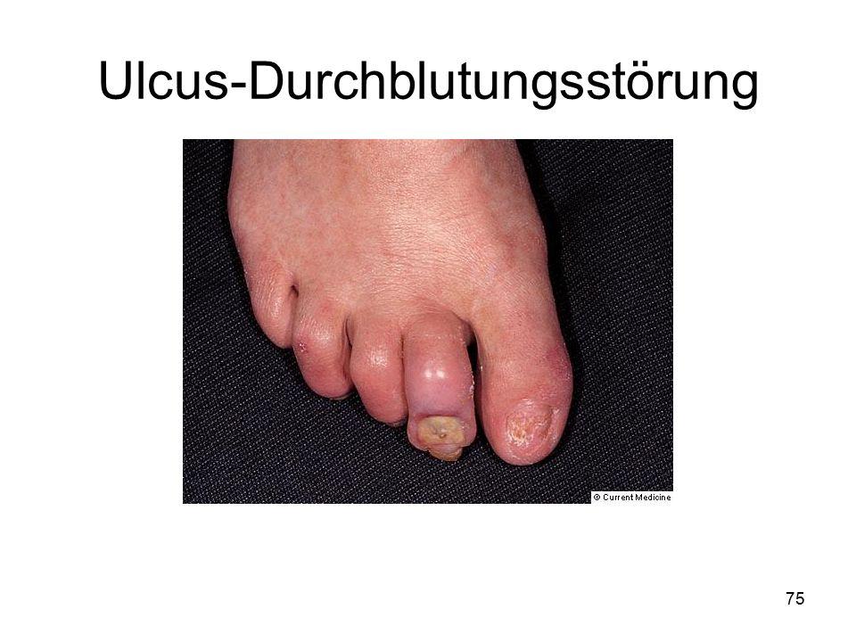 Ulcus-Durchblutungsstörung