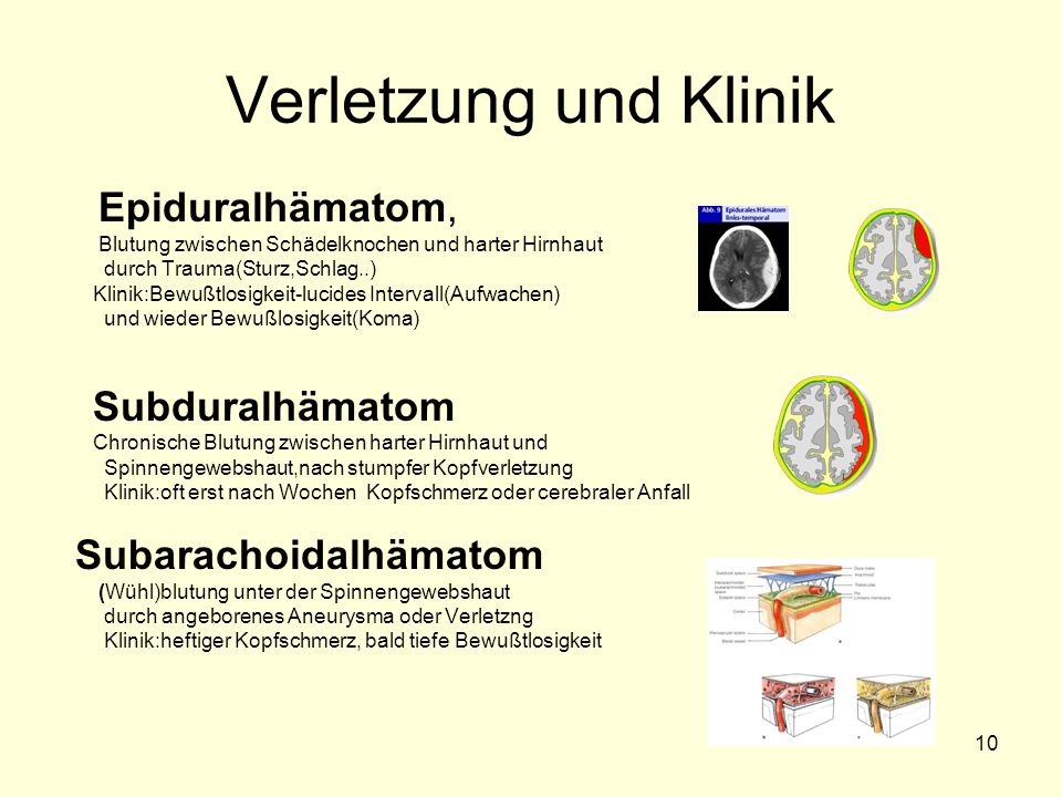 Verletzung und Klinik Epiduralhämatom, Subarachoidalhämatom