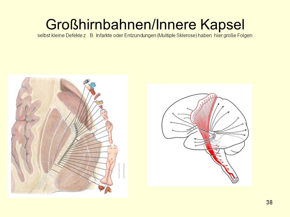 Großhirnbahnen/Innere Kapsel selbst kleine Defekte z. B