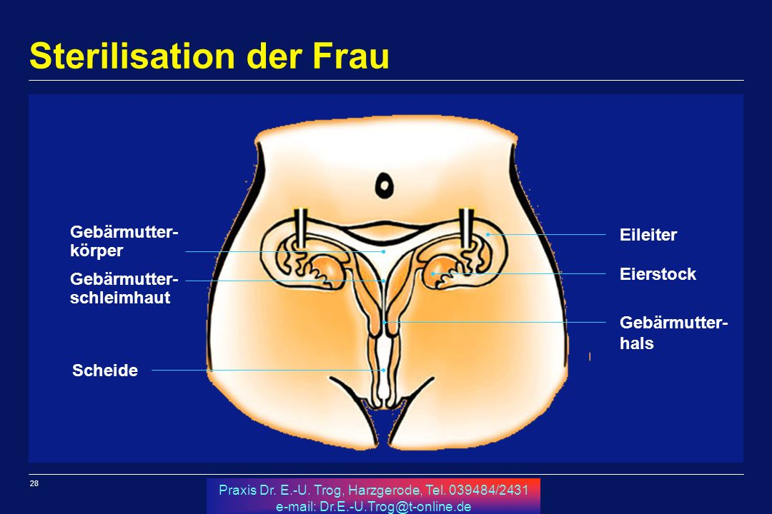 Sterilisation der Frau
