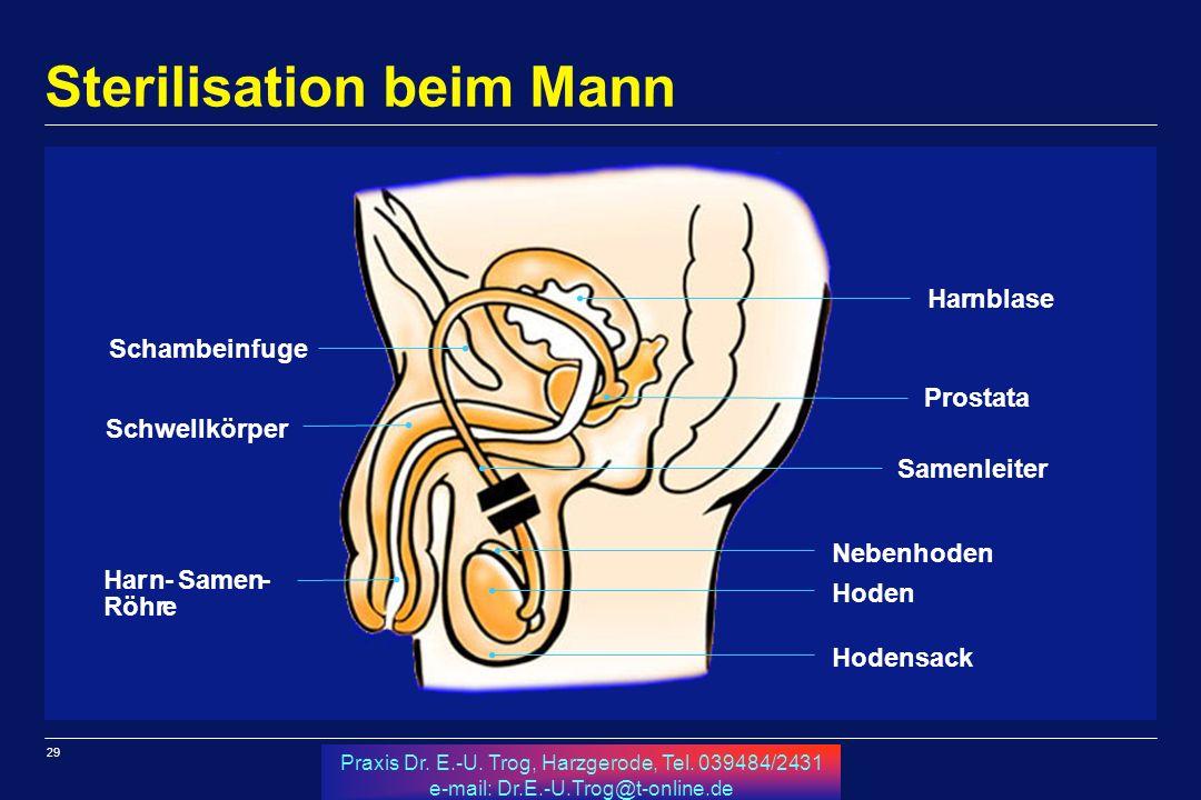 Sterilisation beim Mann