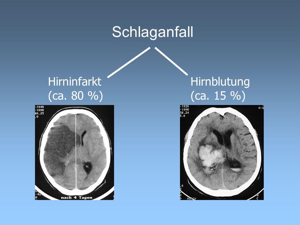 Schlaganfall Hirninfarkt (ca. 80 %) Hirnblutung (ca. 15 %)