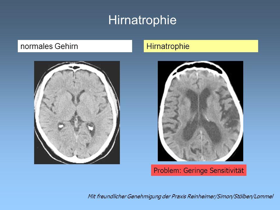 Hirnatrophie normales Gehirn Hirnatrophie