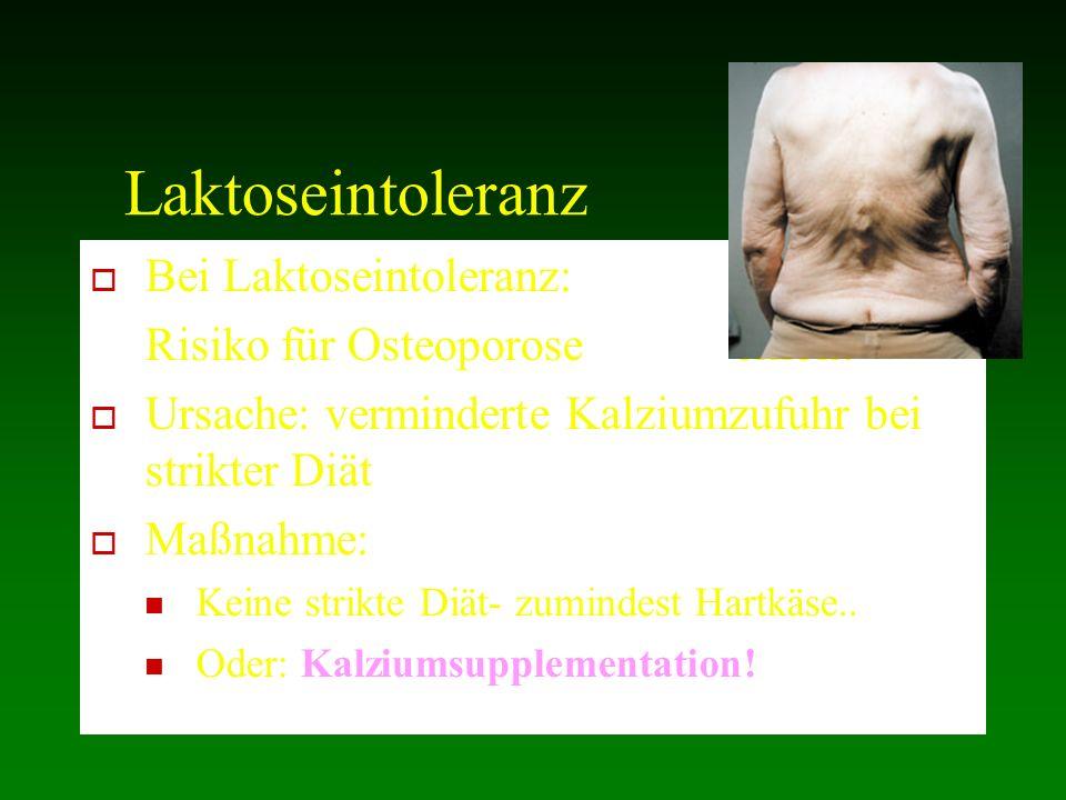 Laktoseintoleranz Bei Laktoseintoleranz: Risiko für Osteoporose erhöht
