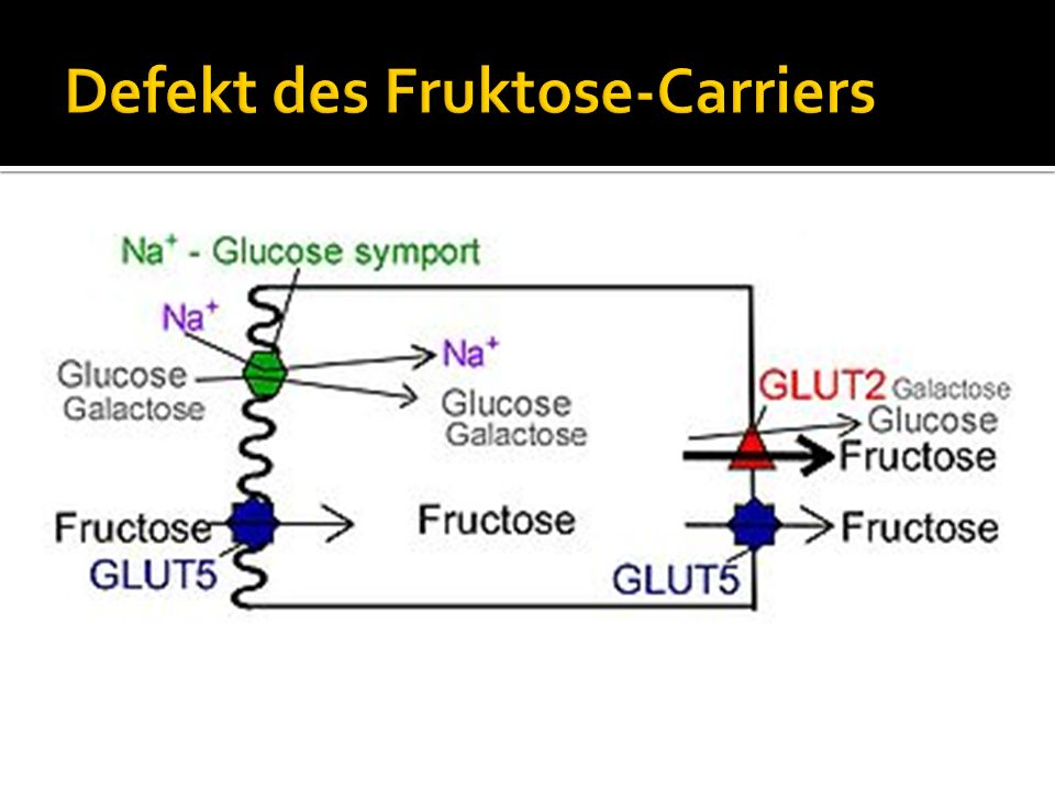 Defekt des Fruktose-Carriers