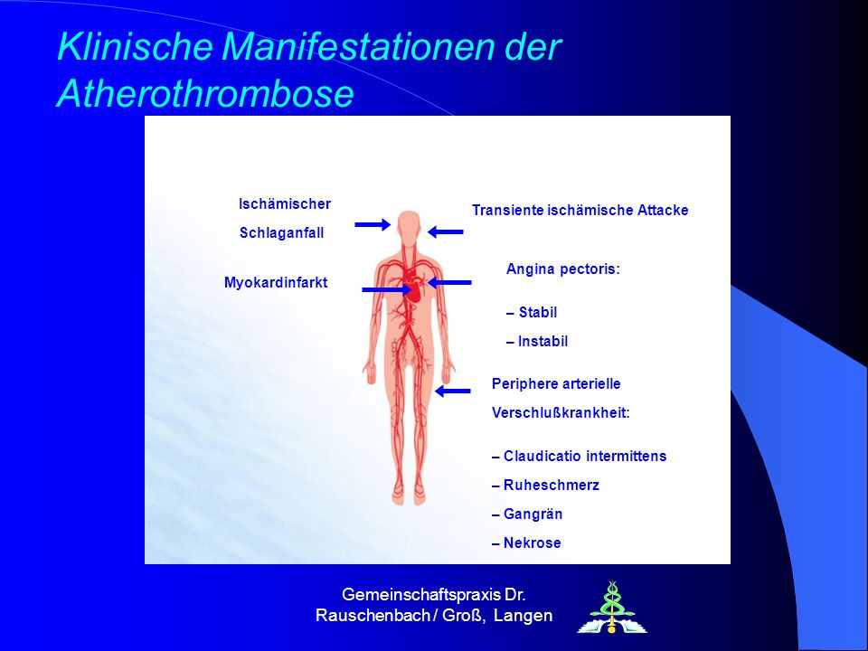Klinische Manifestationen der Atherothrombose