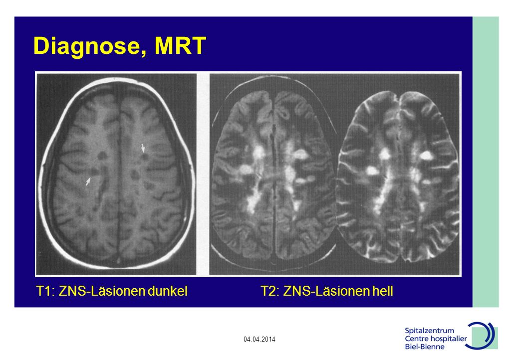 Diagnose, MRT T1: ZNS-Läsionen dunkel T2: ZNS-Läsionen hell