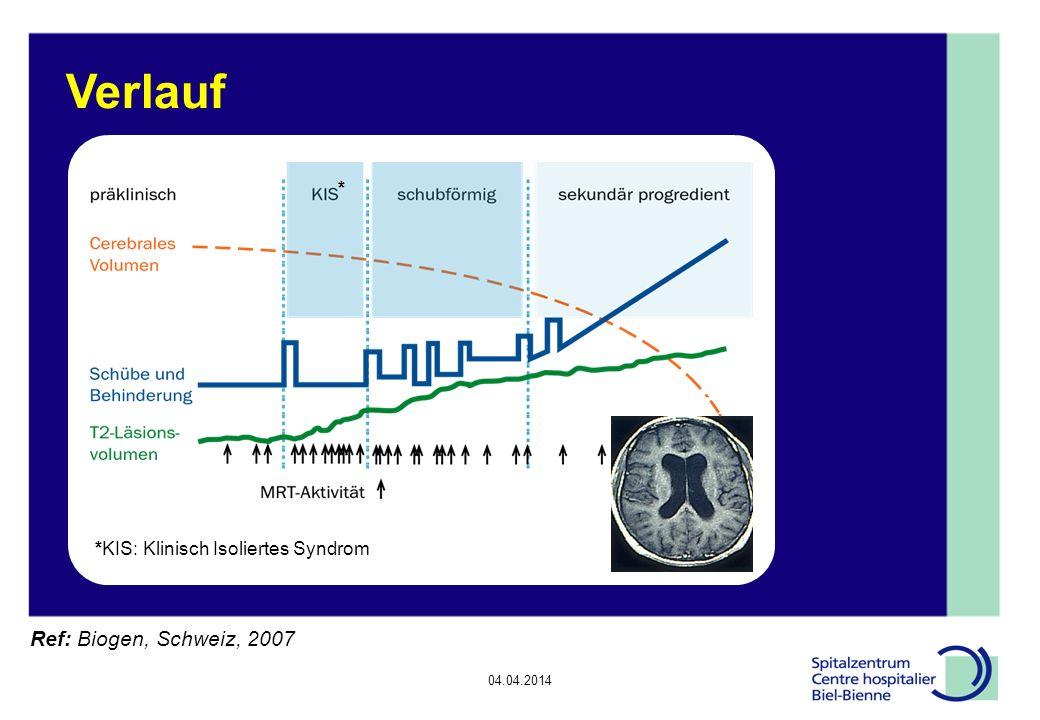 Verlauf * *KIS: Klinisch Isoliertes Syndrom Ref: Biogen, Schweiz, 2007