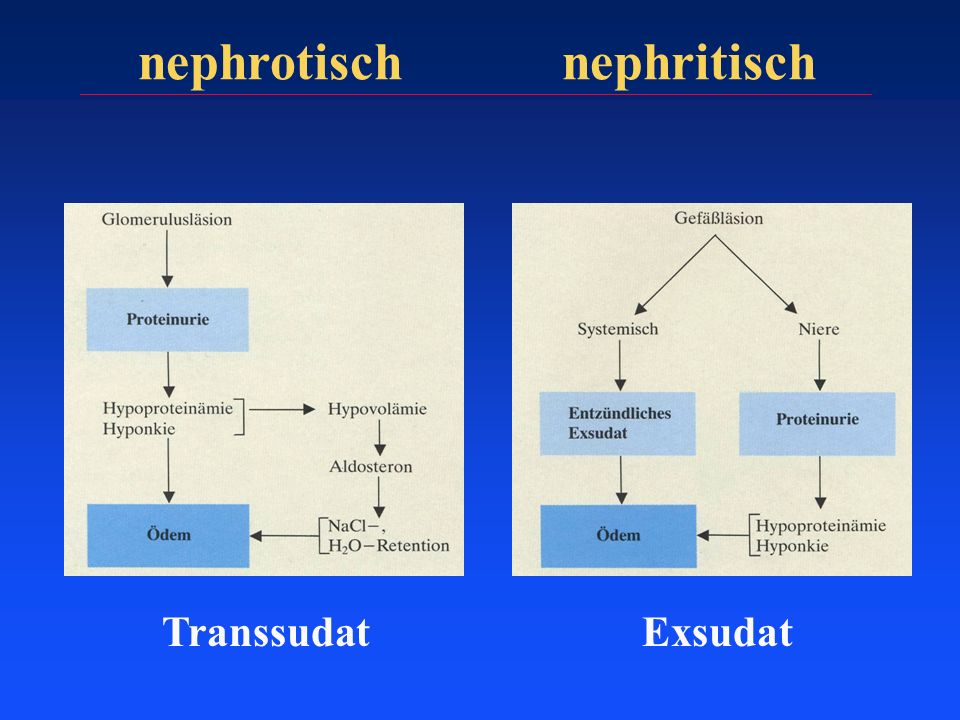nephrotisch nephritisch