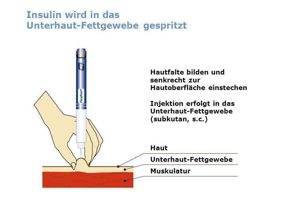Insulin wird in das Unterhaut-Fettgewebe gespritzt