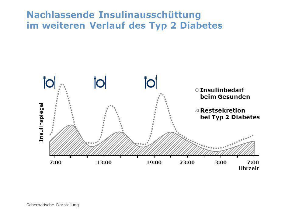 Nachlassende Insulinausschüttung im weiteren Verlauf des Typ 2 Diabetes