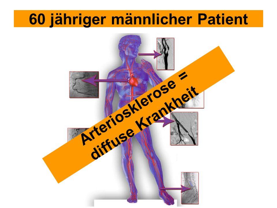 60 jähriger männlicher Patient Arteriosklerose = diffuse Krankheit
