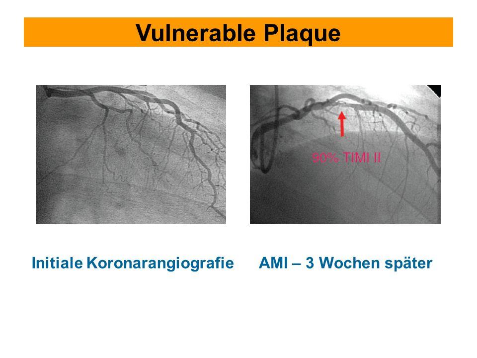 Vulnerable Plaque AMI – 3 Wochen später Initiale Koronarangiografie