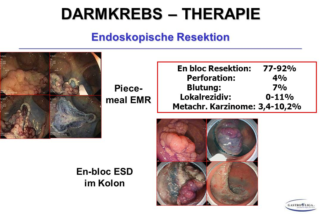 Endoskopische Resektion
