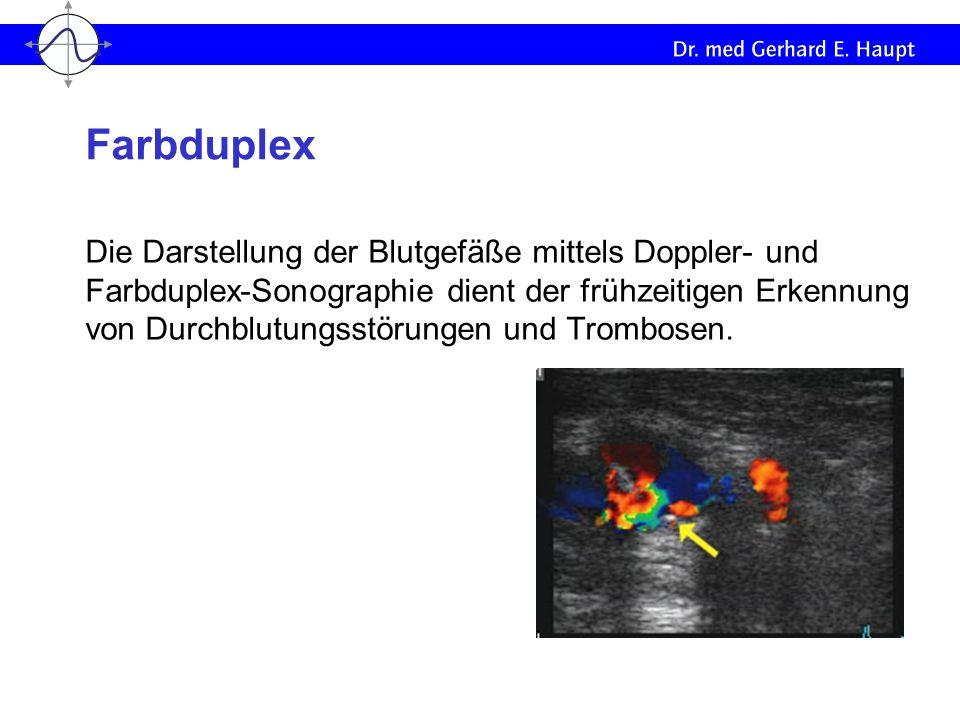 Farbduplex