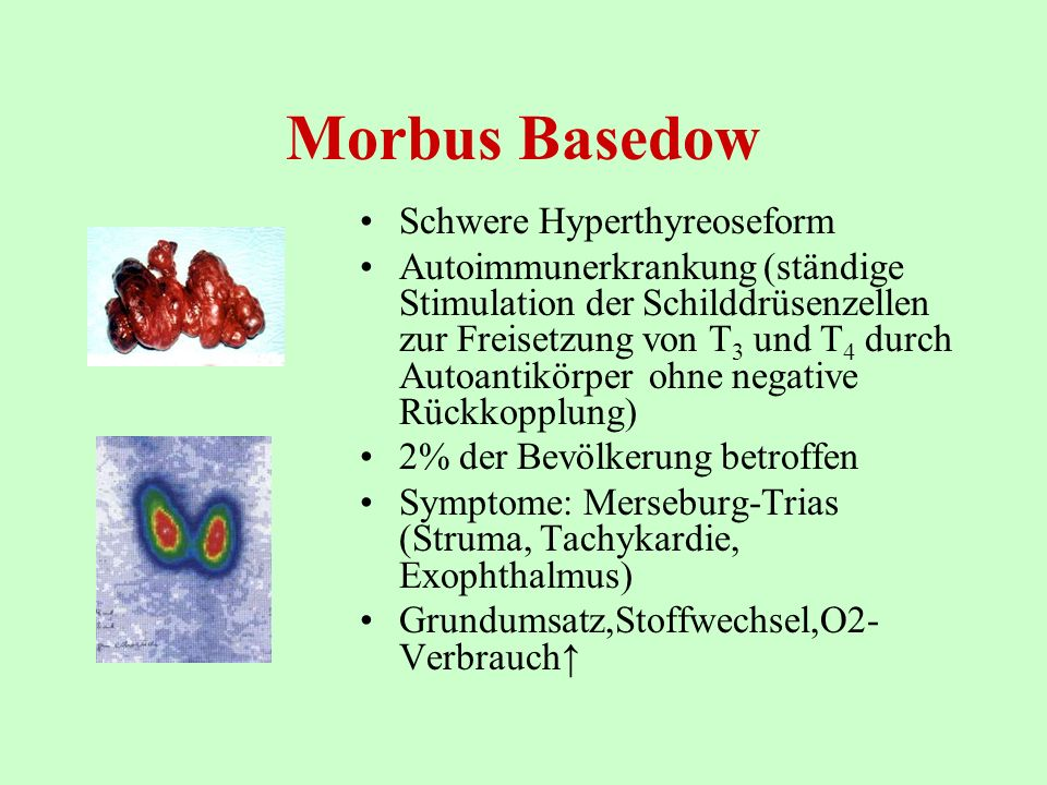 Morbus Basedow Schwere Hyperthyreoseform