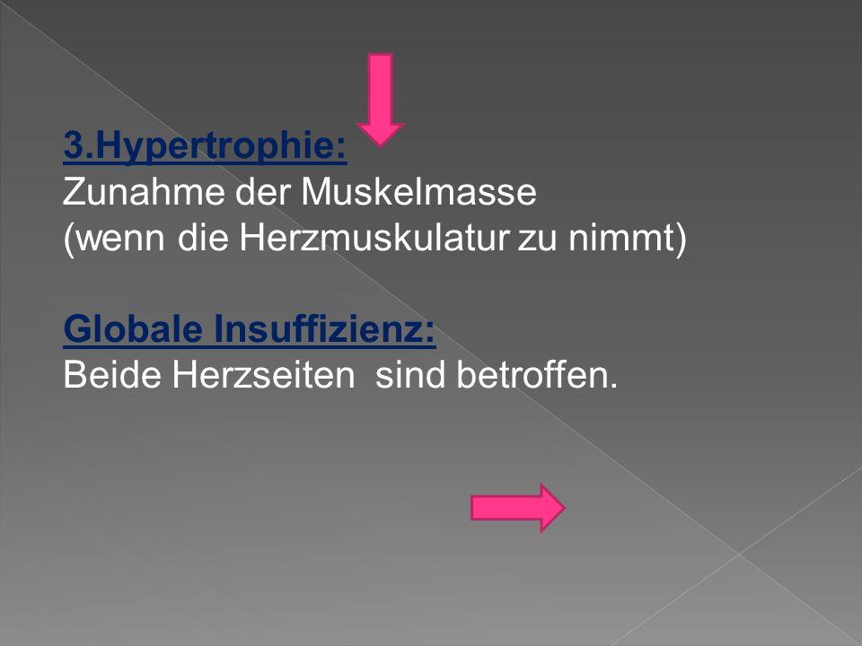 3.Hypertrophie: Zunahme der Muskelmasse. (wenn die Herzmuskulatur zu nimmt) Globale Insuffizienz: