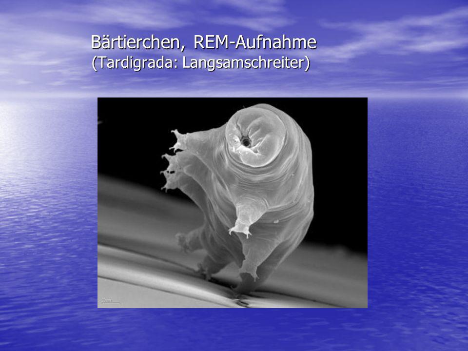 Bärtierchen, REM-Aufnahme (Tardigrada: Langsamschreiter)