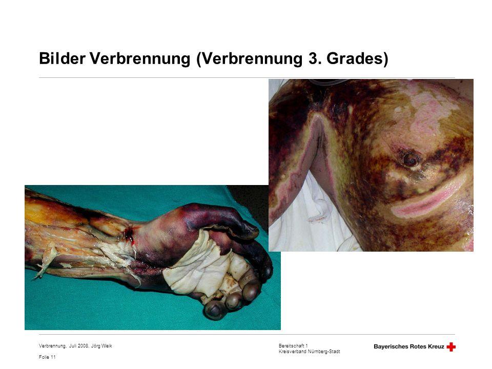 Bilder Verbrennung (Verbrennung 3. Grades)