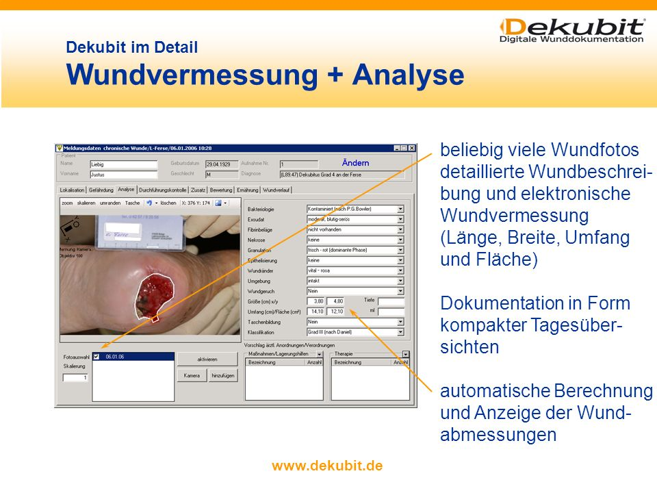 Dekubit im Detail Wundvermessung + Analyse