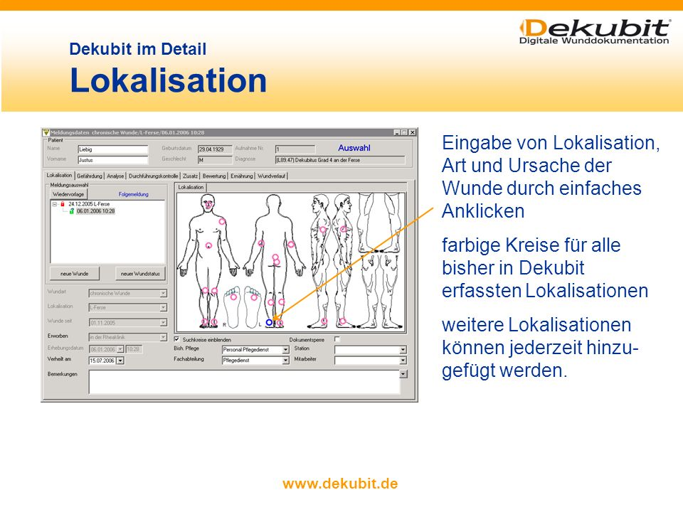 Dekubit im Detail Lokalisation
