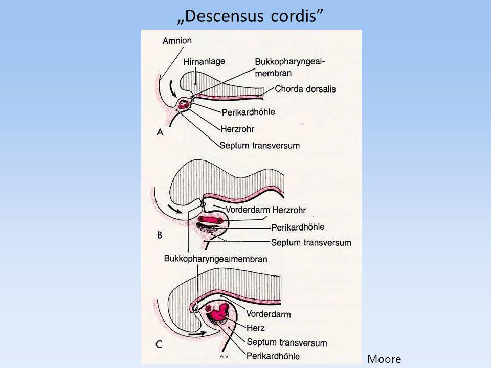 """Descensus cordis Moore"
