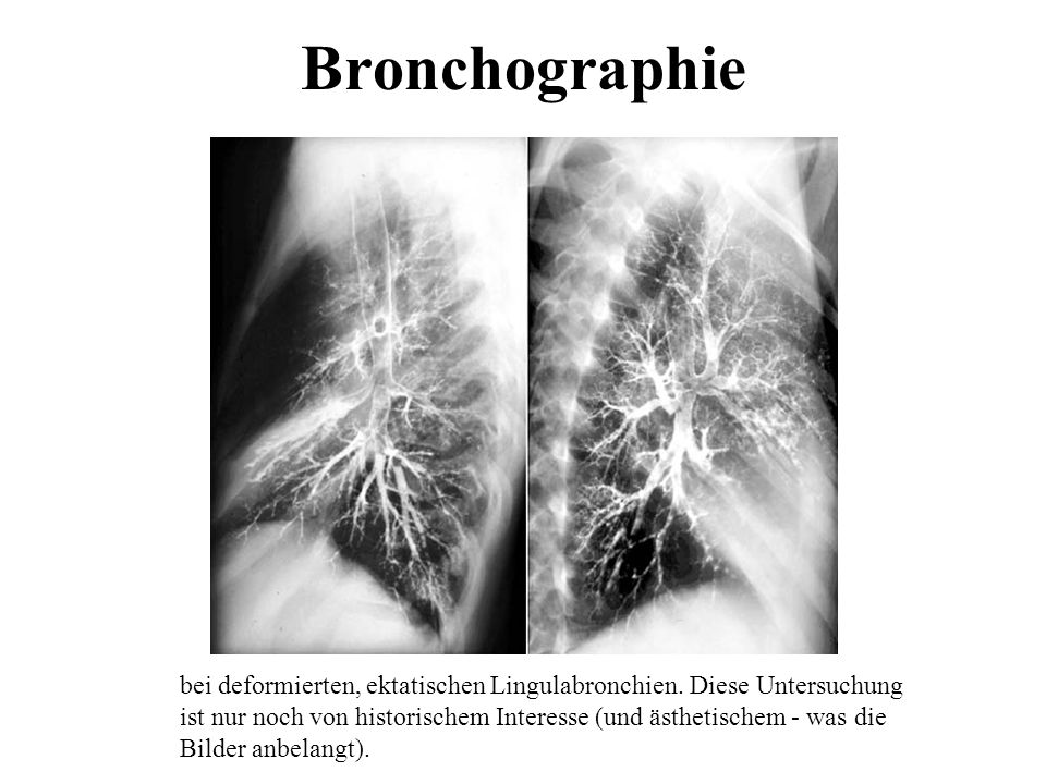 Bronchographie