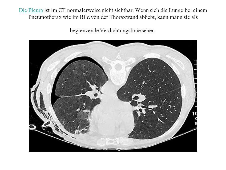 Die Pleura ist im CT normalerweise nicht sichtbar