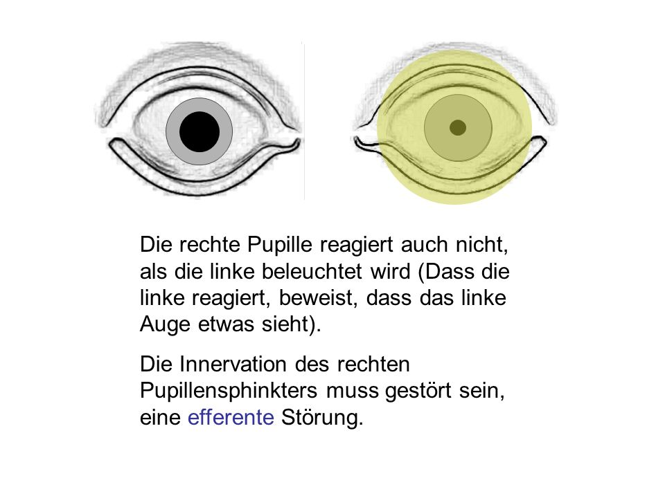 Die rechte Pupille reagiert auch nicht, als die linke beleuchtet wird (Dass die linke reagiert, beweist, dass das linke Auge etwas sieht).