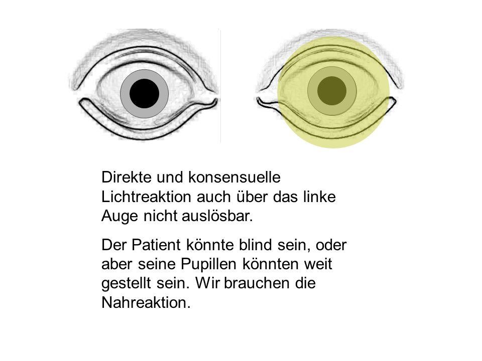 Direkte und konsensuelle Lichtreaktion auch über das linke Auge nicht auslösbar.