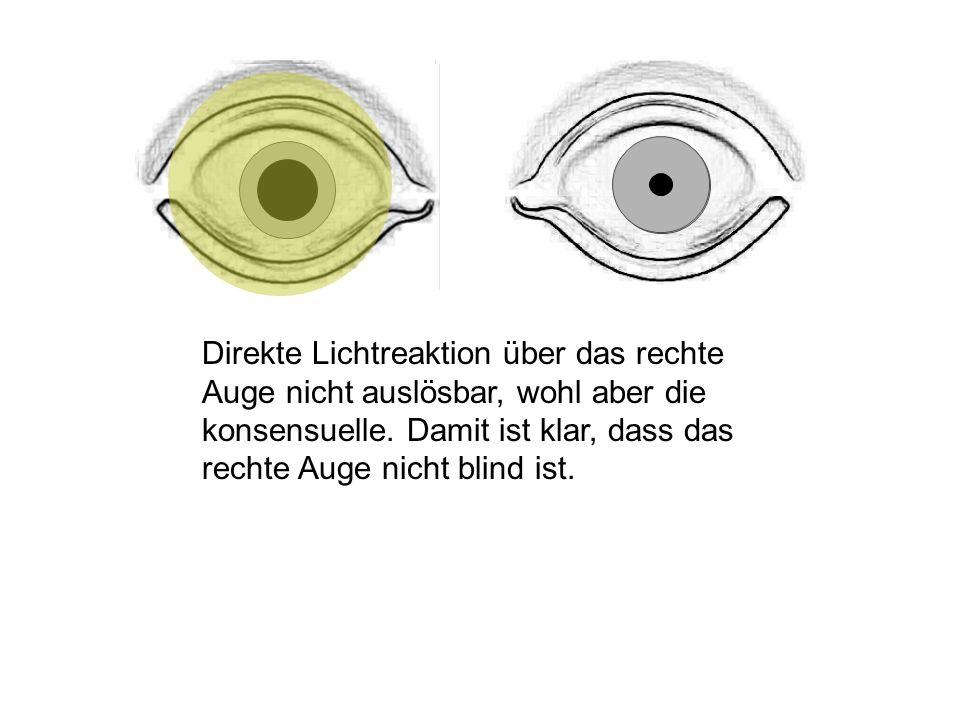 Direkte Lichtreaktion über das rechte Auge nicht auslösbar, wohl aber die konsensuelle.