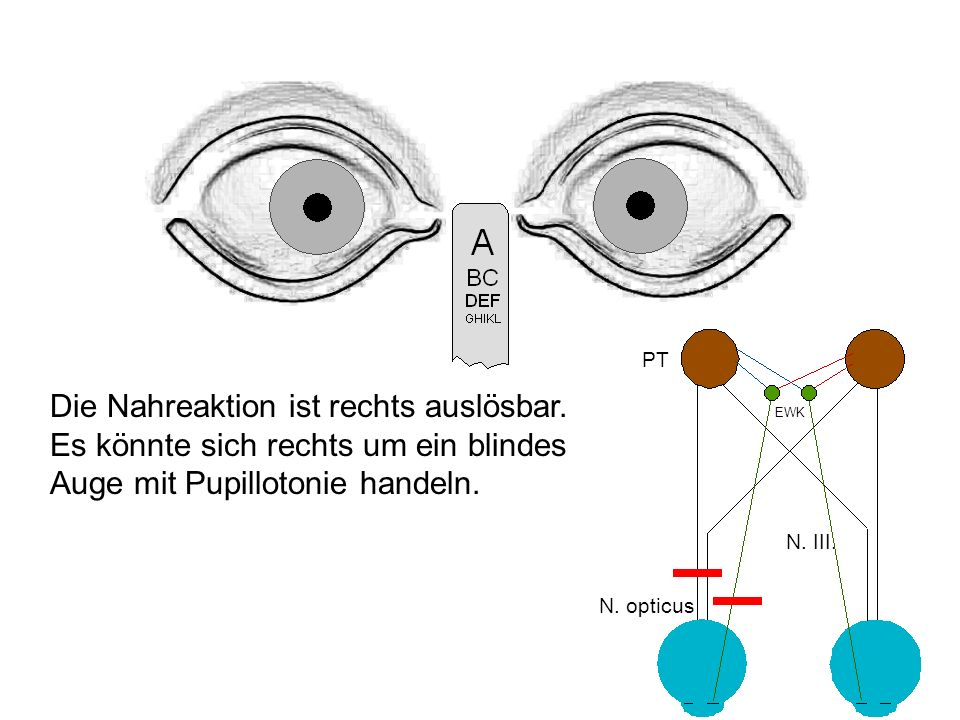 PT Die Nahreaktion ist rechts auslösbar. Es könnte sich rechts um ein blindes Auge mit Pupillotonie handeln.