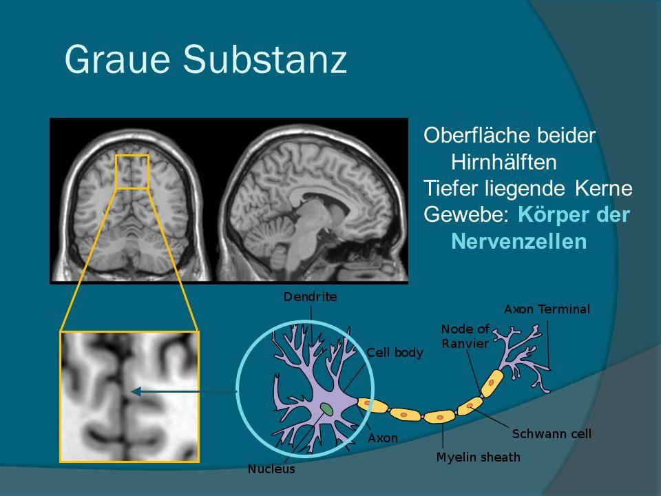 Graue Substanz Oberfläche beider Hirnhälften Tiefer liegende Kerne Gewebe: Körper der Nervenzellen