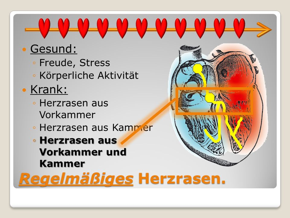 Regelmäßiges Herzrasen.