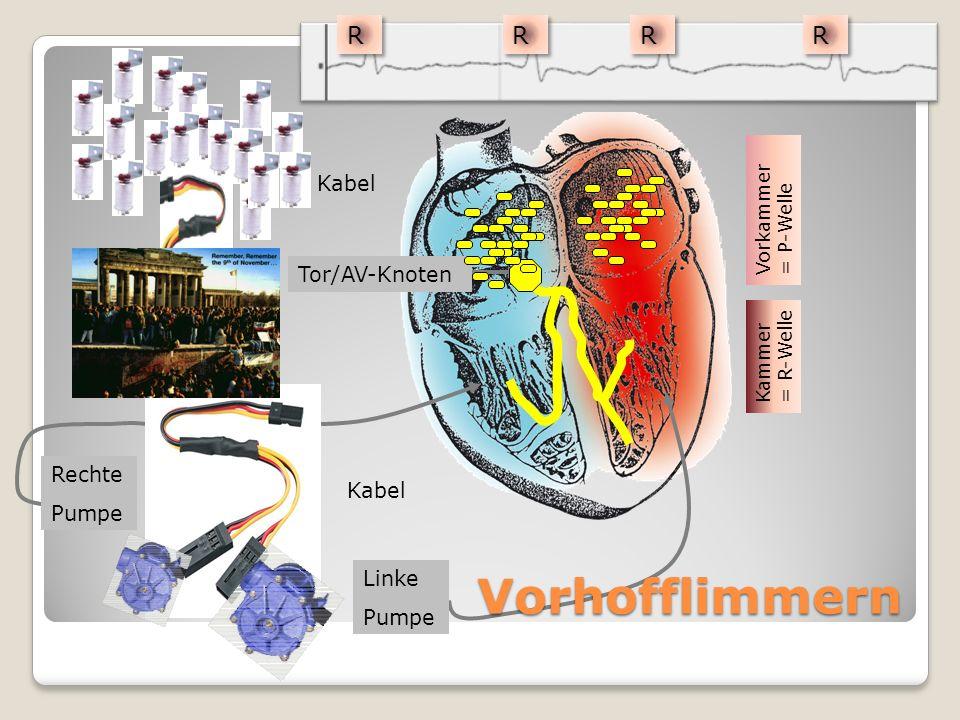 Vorhofflimmern R Kabel Tor/AV-Knoten Rechte Kabel Linke Pumpe