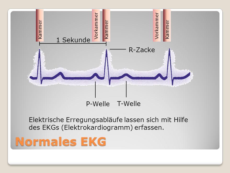 Normales EKG 1 Sekunde R-Zacke P-Welle T-Welle