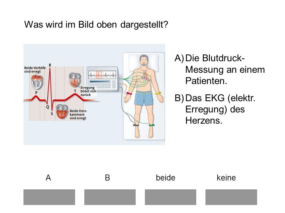 Schön Markiertes Herz Diagramm Bilder - Menschliche Anatomie Bilder ...
