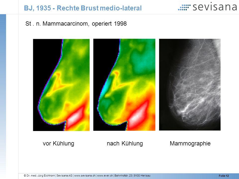 BJ, 1935 - Rechte Brust medio-lateral