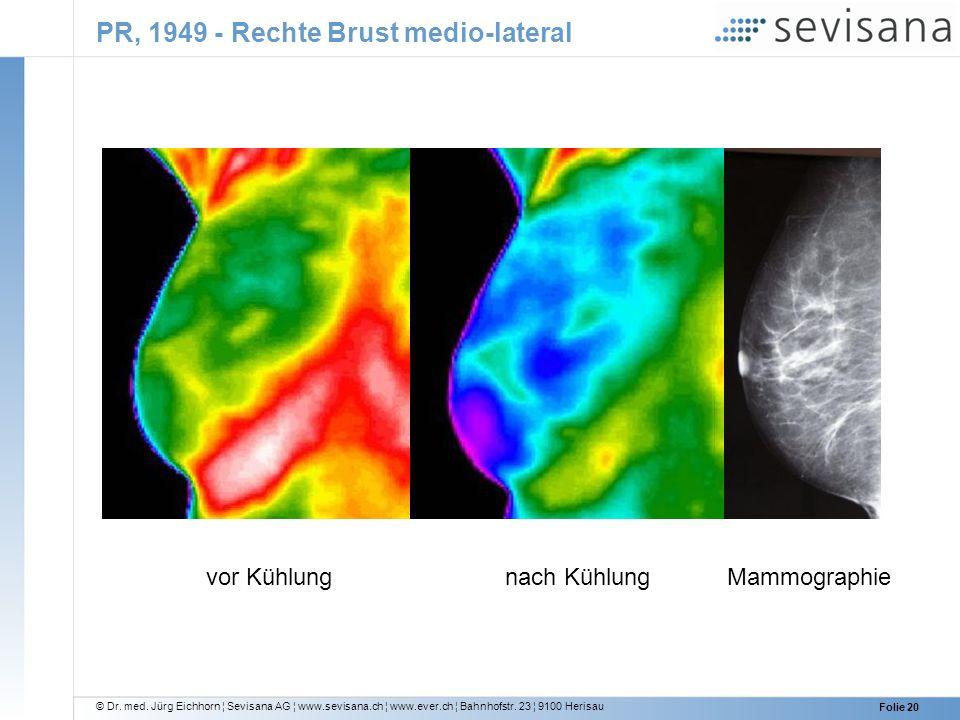 PR, 1949 - Rechte Brust medio-lateral