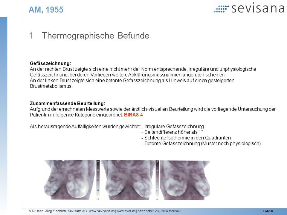 Thermographische Befunde